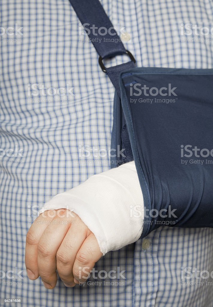 Man's arm in cast and sling royalty-free stock photo