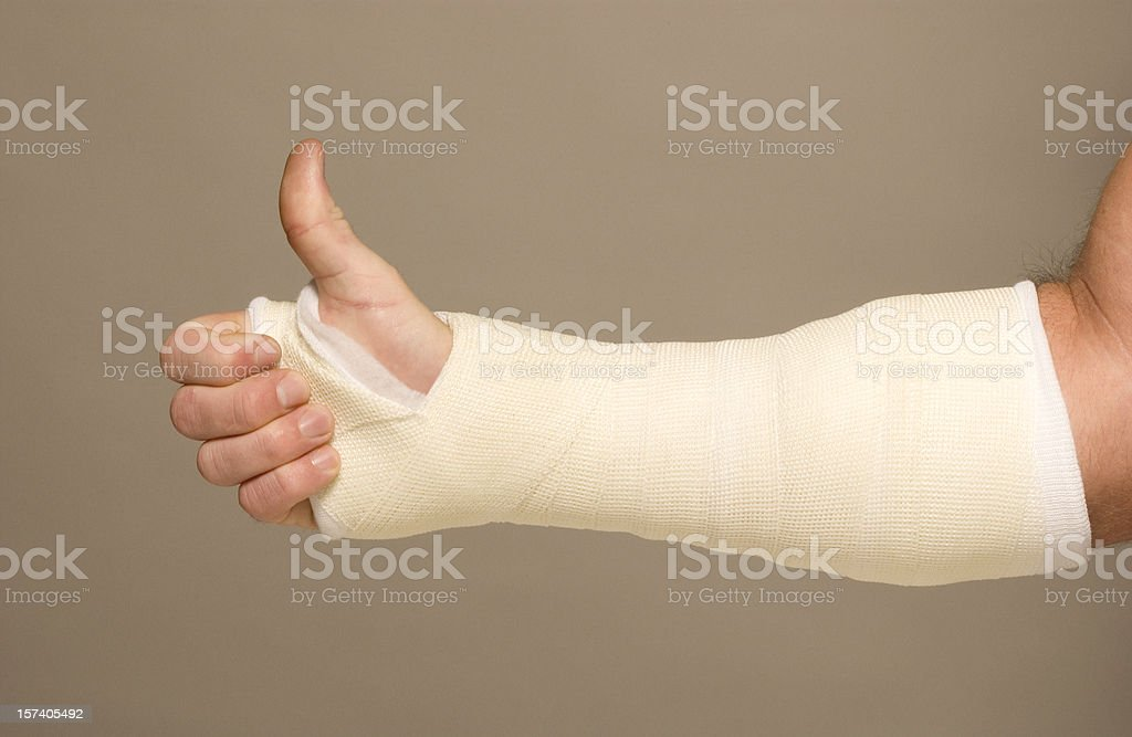 Mans arm in cast royalty-free stock photo