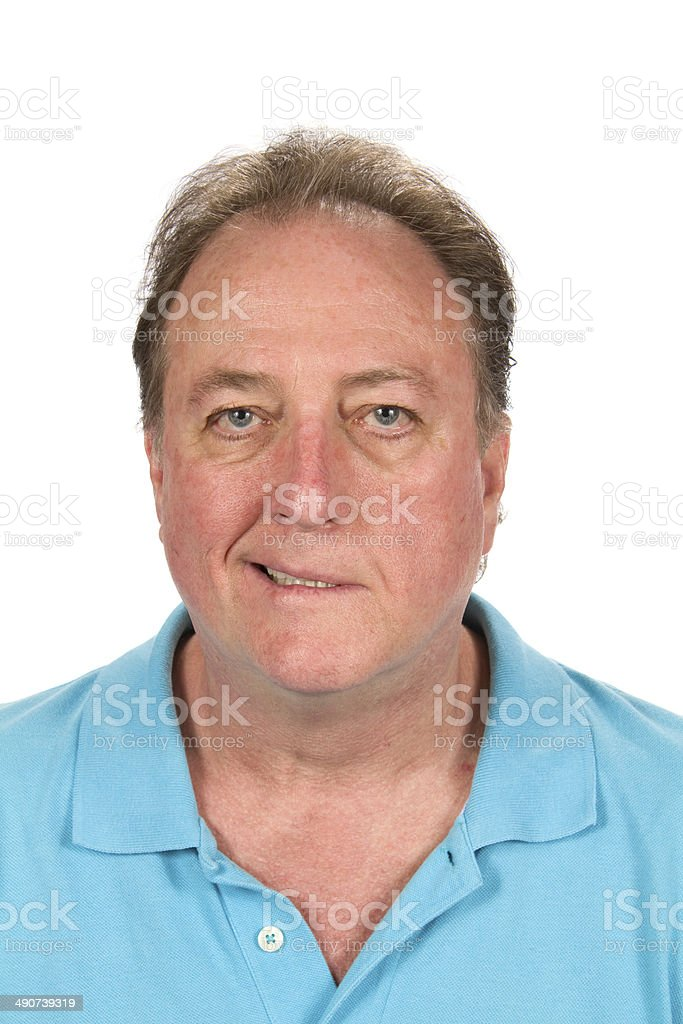 Mans Bell's Palsy stock photo