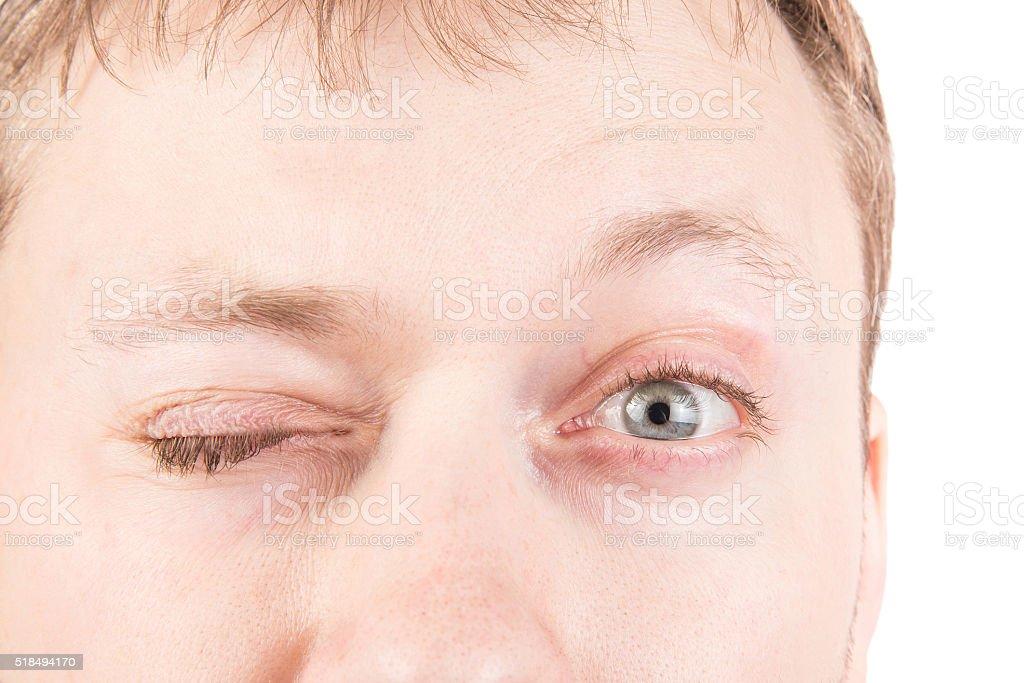 Man's blinking eyes stock photo