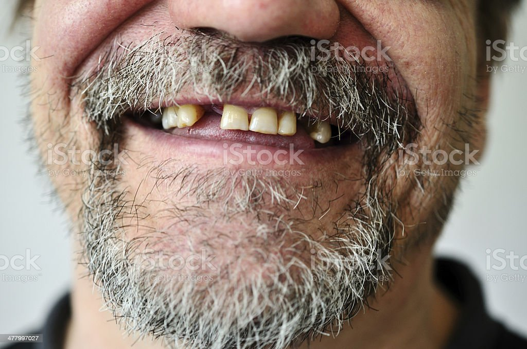 man's face with a smiling toothless stock photo
