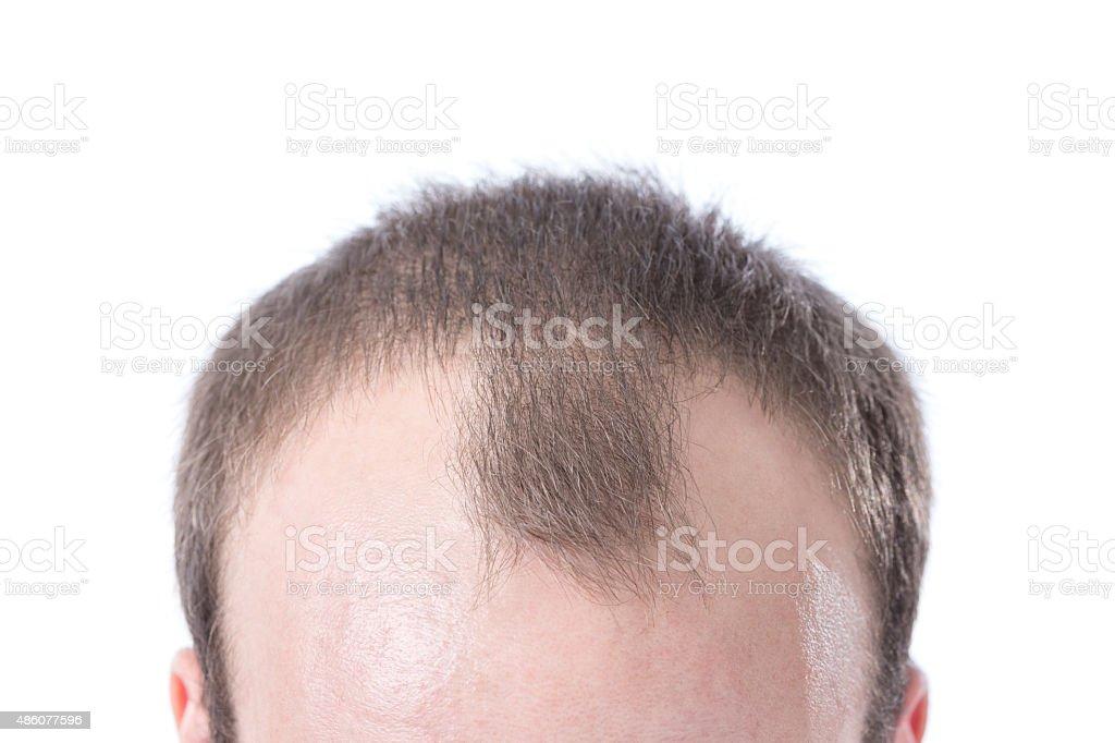 Man's Receding Hairline stock photo