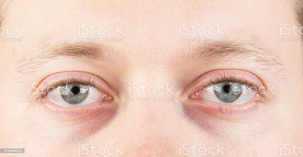 Man\'s tired gray eyes, clean skin