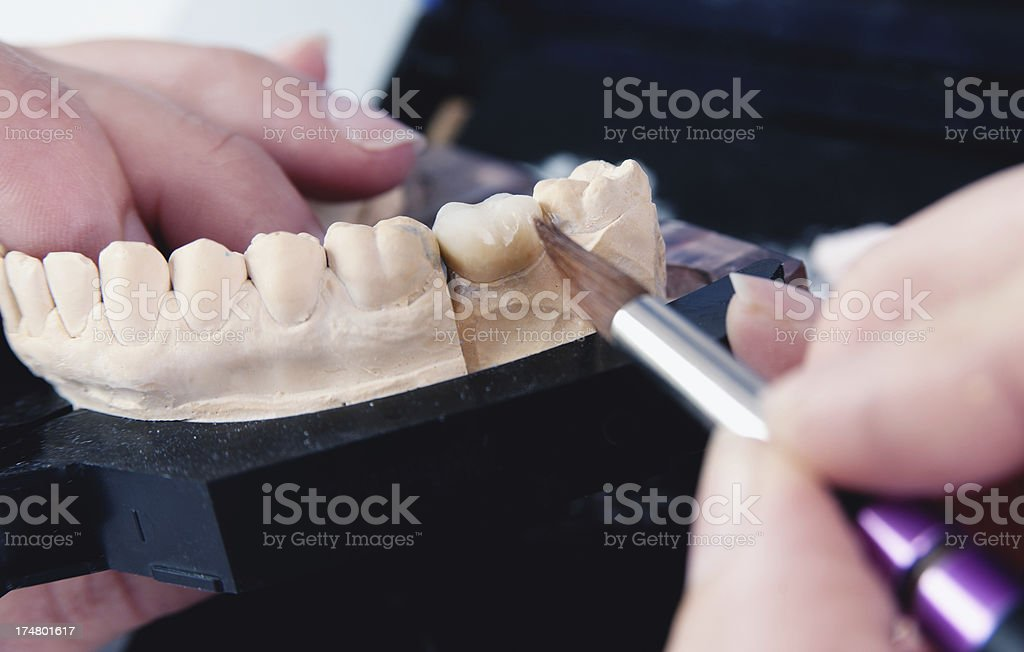 Manufacturing of Ceramic Crown stock photo