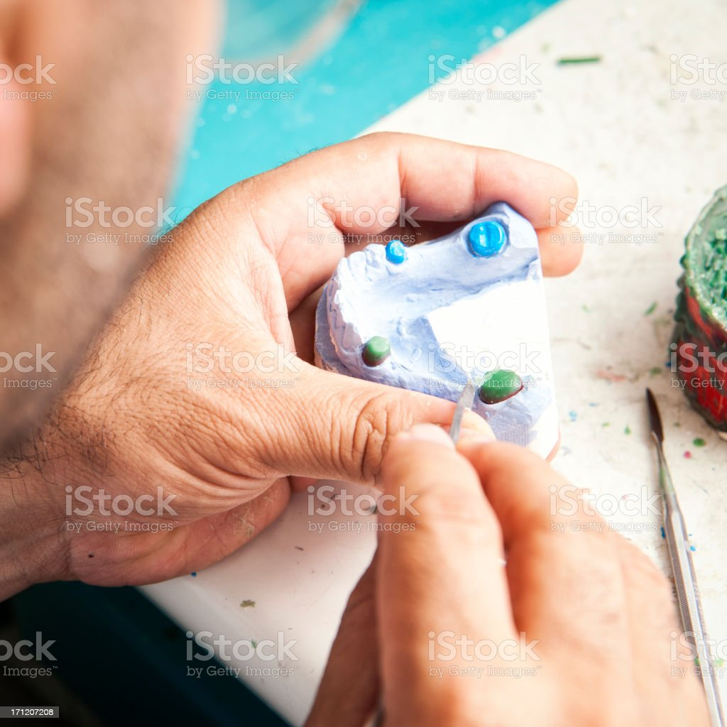 Manufacturing of dental prosthesis royalty-free stock photo
