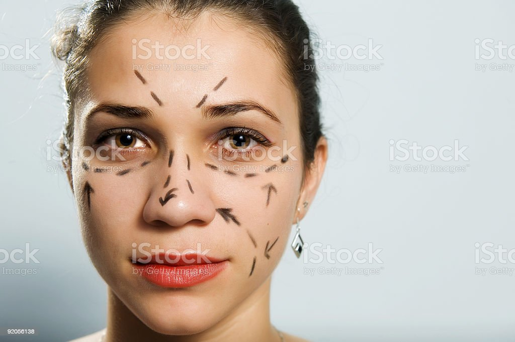 Marked face for plastic surgery royalty-free stock photo