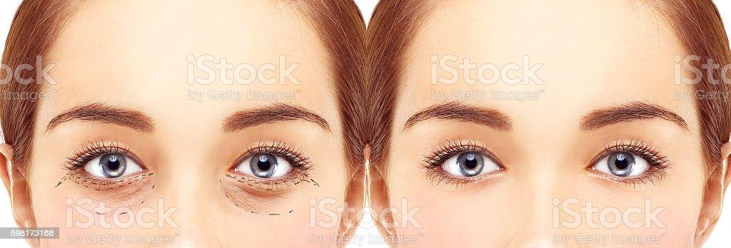 Marking the face.Lower-Eyelid Blepharoplasty stock photo