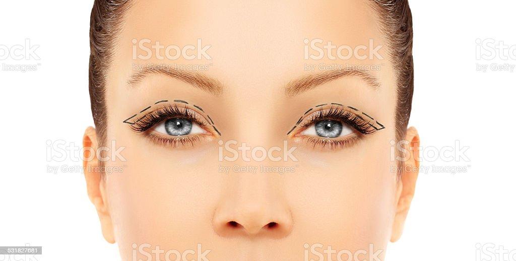 Marking the face.Upper-Eyelid Blepharoplasty stock photo