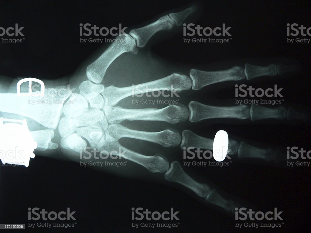 Married X-Ray stock photo
