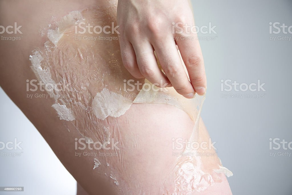 Mask for skin thighs against stretch marks and cellulite stock photo