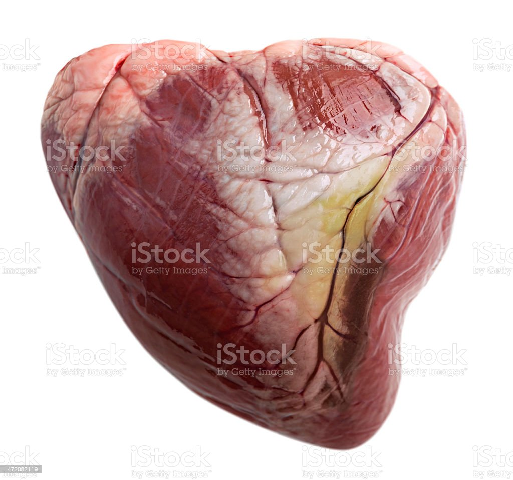Massive heart attack damage stock photo