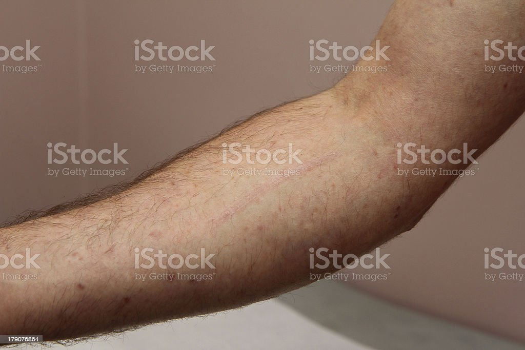 Mastocytosis royalty-free stock photo