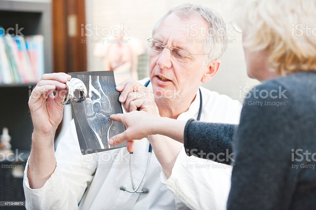 Mature doctor presenting x-ray and knee arthroplasty to female patient stock photo