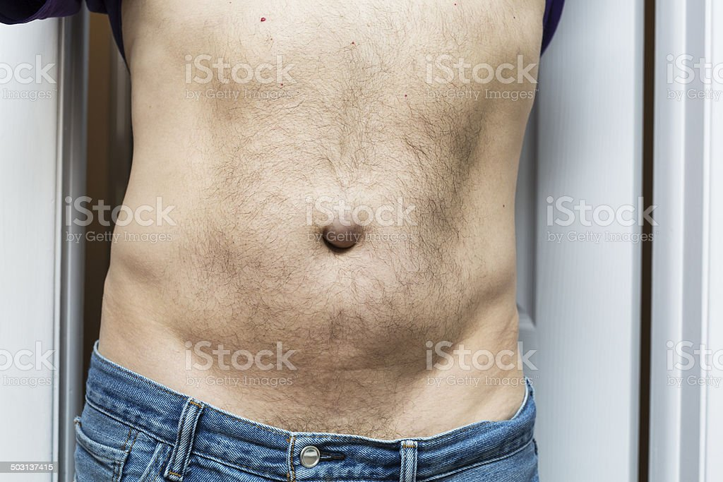 Mature Male Showing Umbilical Hernia stock photo