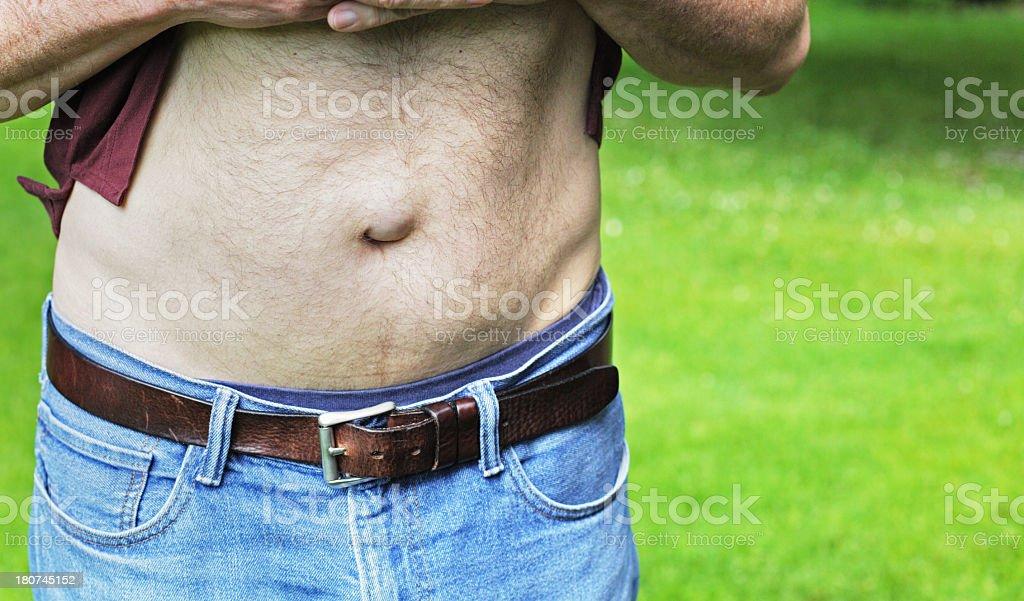Mature Man With Umbilical Hernia stock photo