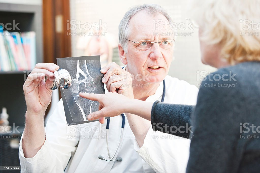 Mature medicine presenting x-ray and knee arthroplasty to female patient stock photo