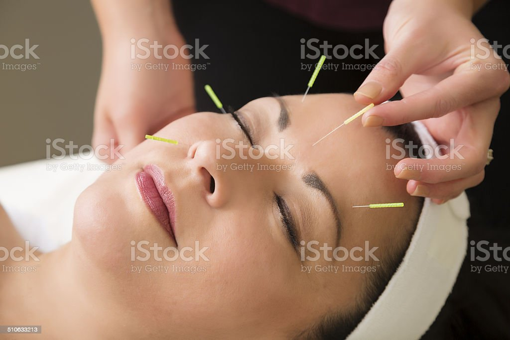 Mature woman getting acupuncture treatment at the spa stock photo