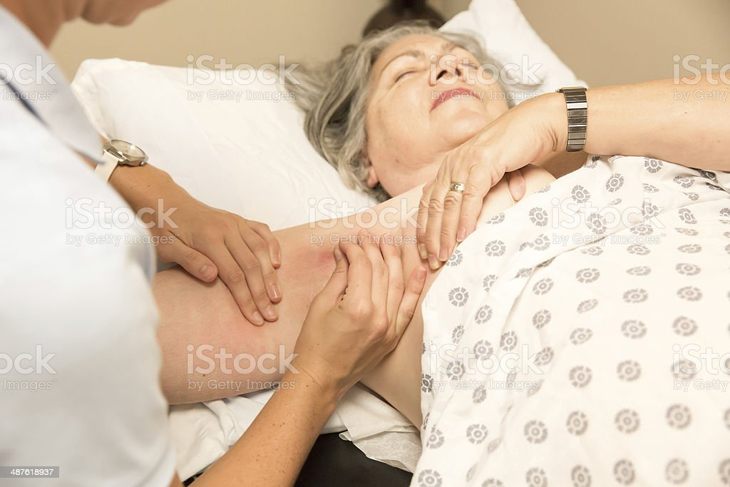 mature woman with lymphedema stock photo