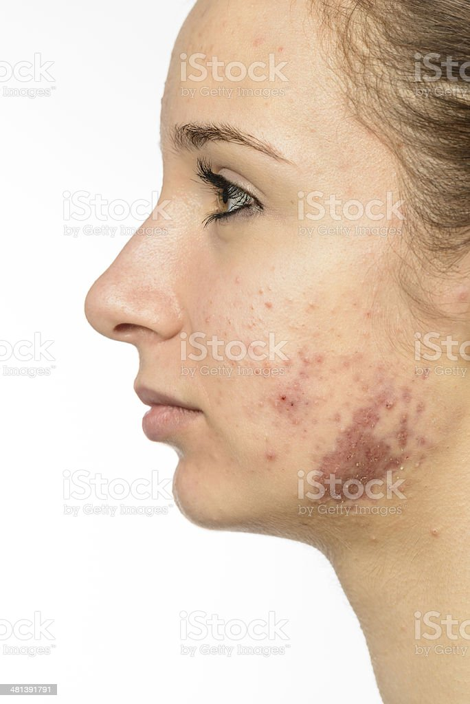 medical acne problems stock photo