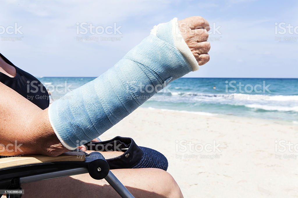 Medical: Broken arm in the summer royalty-free stock photo