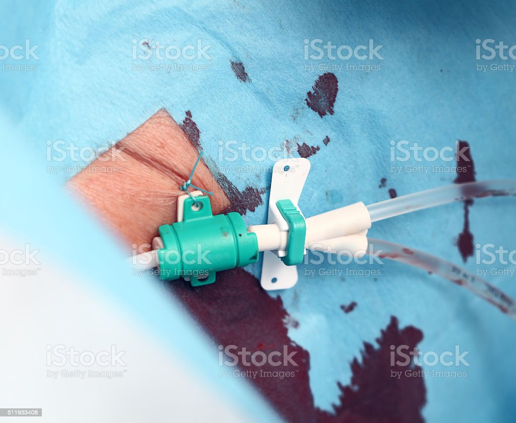 Medical catheter sewn to skin of the patient stock photo