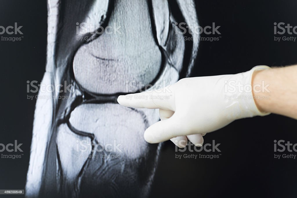 Medical doctor pointing at radiograph x-ray image! royalty-free stock photo