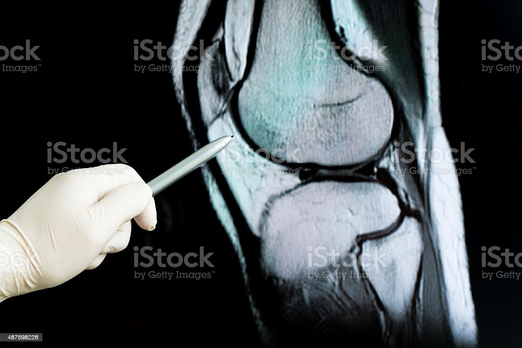 Medical doctor pointing at radiograph x-ray image! stock photo