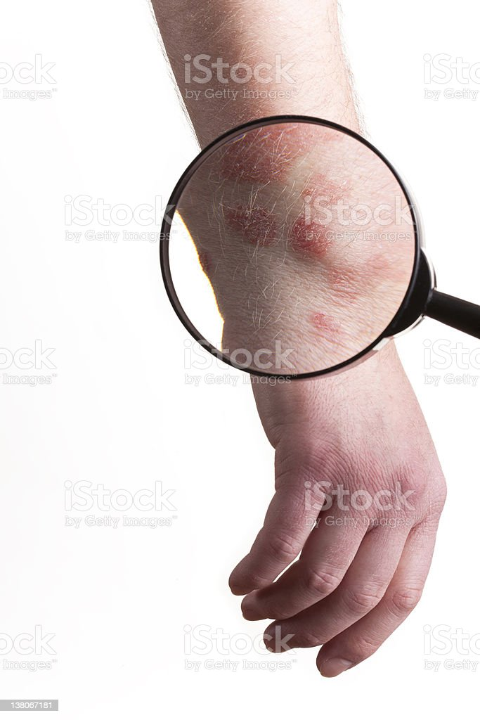 Medical Exam on Psoriasis royalty-free stock photo