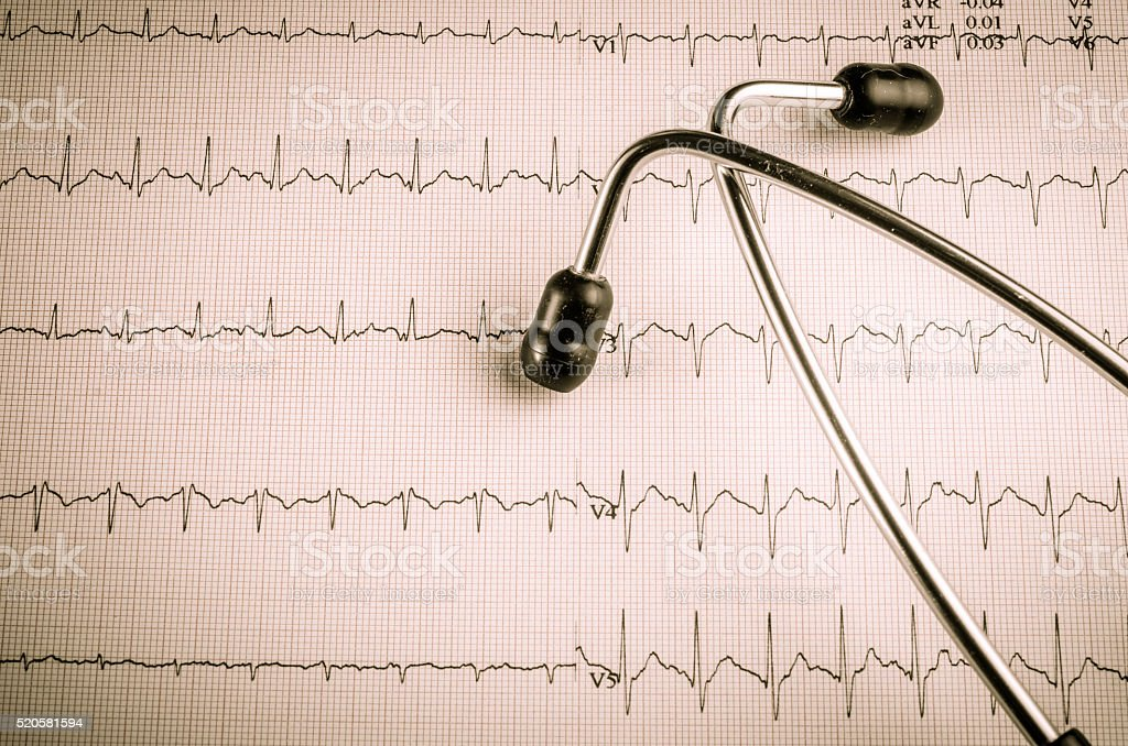 medical examination, electrocardiogram, heart medicine and therapy, vintage style.. stock photo