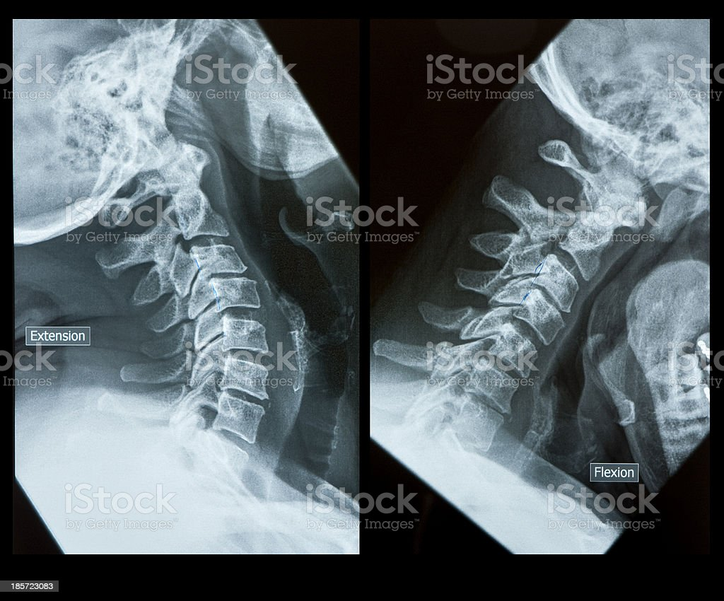 X-Ray cervical spine
