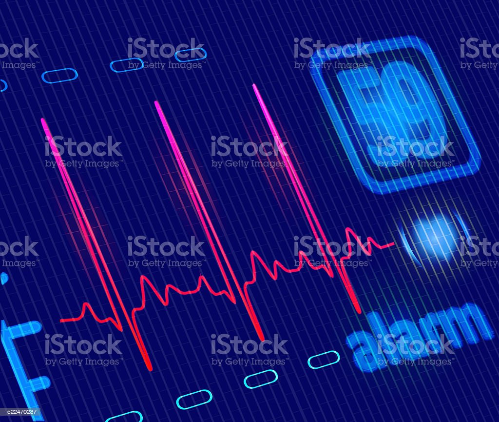 LCD Medical Heart Monitor with ECG wave. stock photo