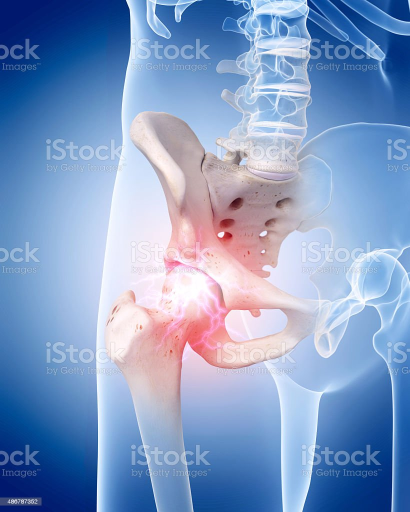 painful hip joint vector art illustration