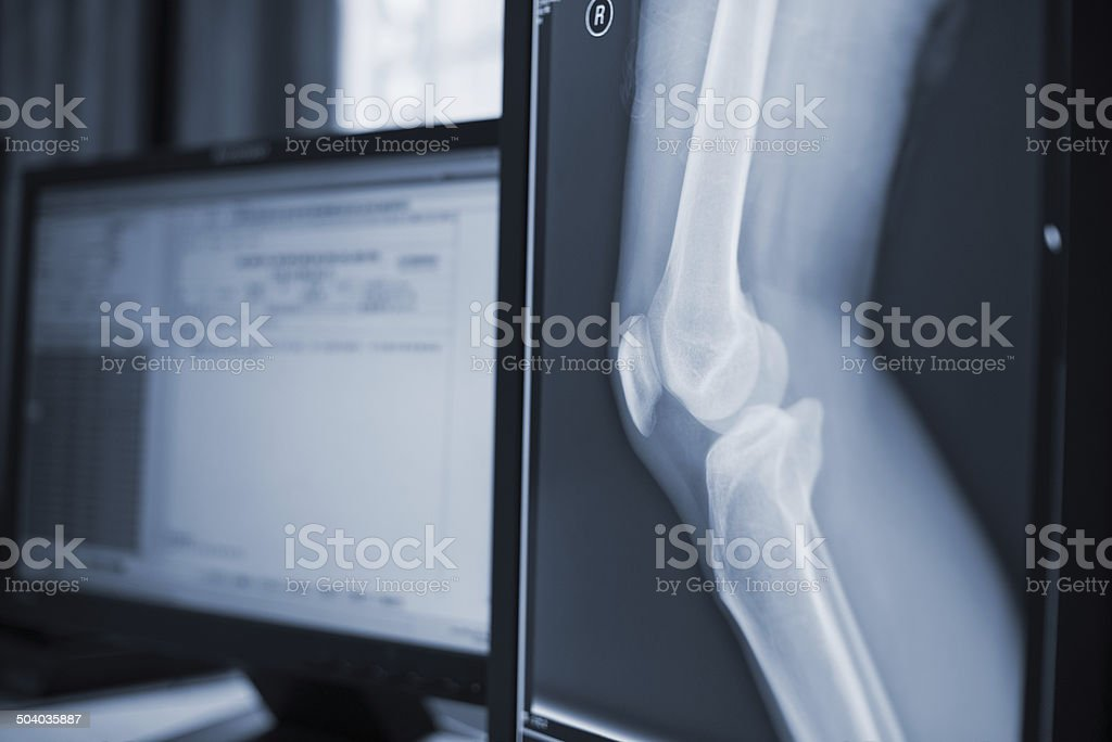 medical image stock photo