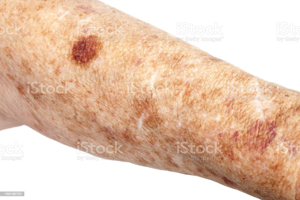 Medical: Liver Spots and Hematoma stock photo