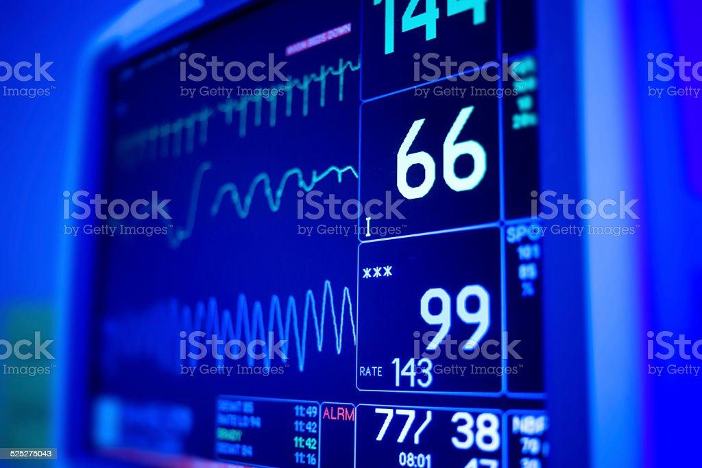 Medical Monitoring Screen stock photo