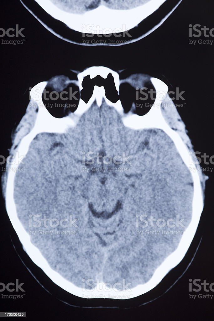 Medical MRI Image Showing Brain and Skull royalty-free stock photo