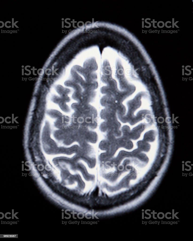 Medical MRI Image Showing Brain and Skull stock photo