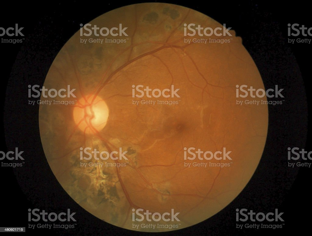 Medical Photo Retina Of Diabetic And Laser stock photo