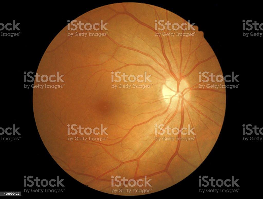 medical photo retinal stock photo