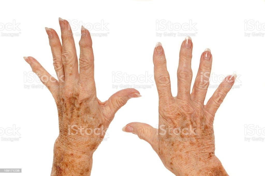 Medical: Rheumatoid Arthritis and Liver Spots stock photo