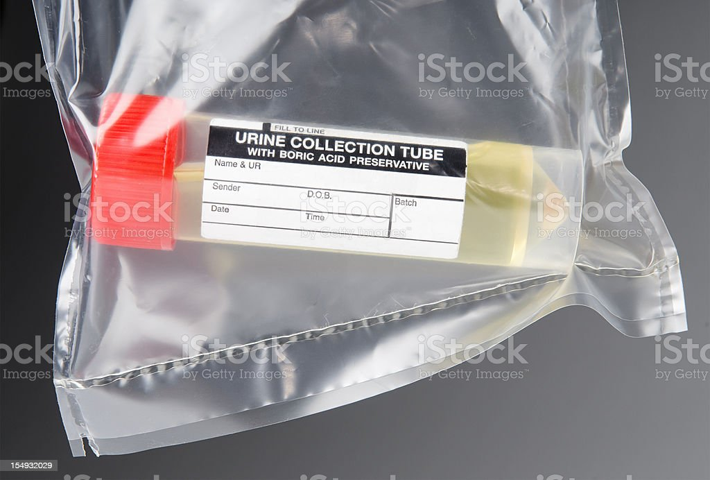 Medical Sample of Urine stock photo