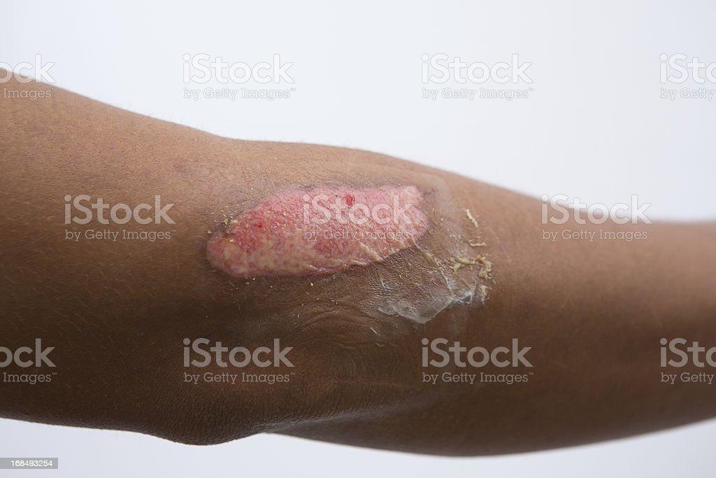 Medical: Second degree burn royalty-free stock photo