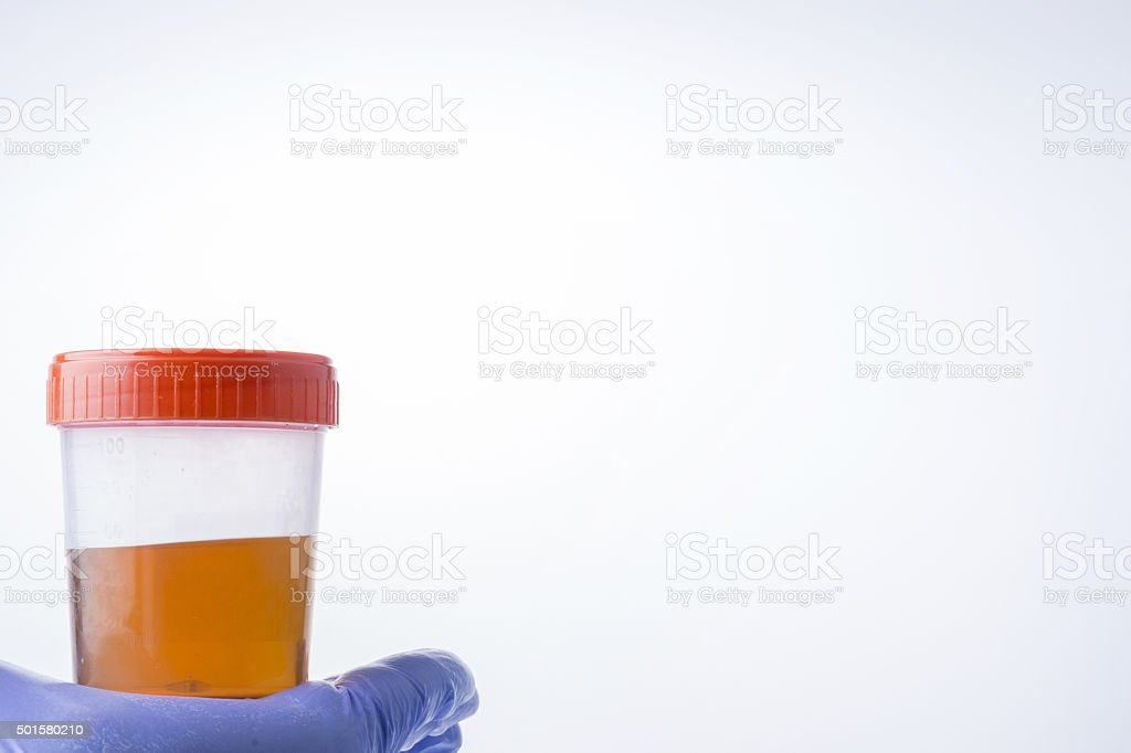 Medical Urine Specimen Jar stock photo