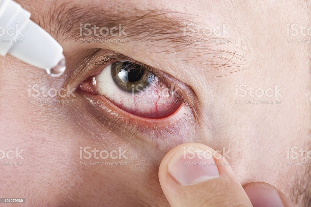 Medicine eyedropper royalty-free stock photo