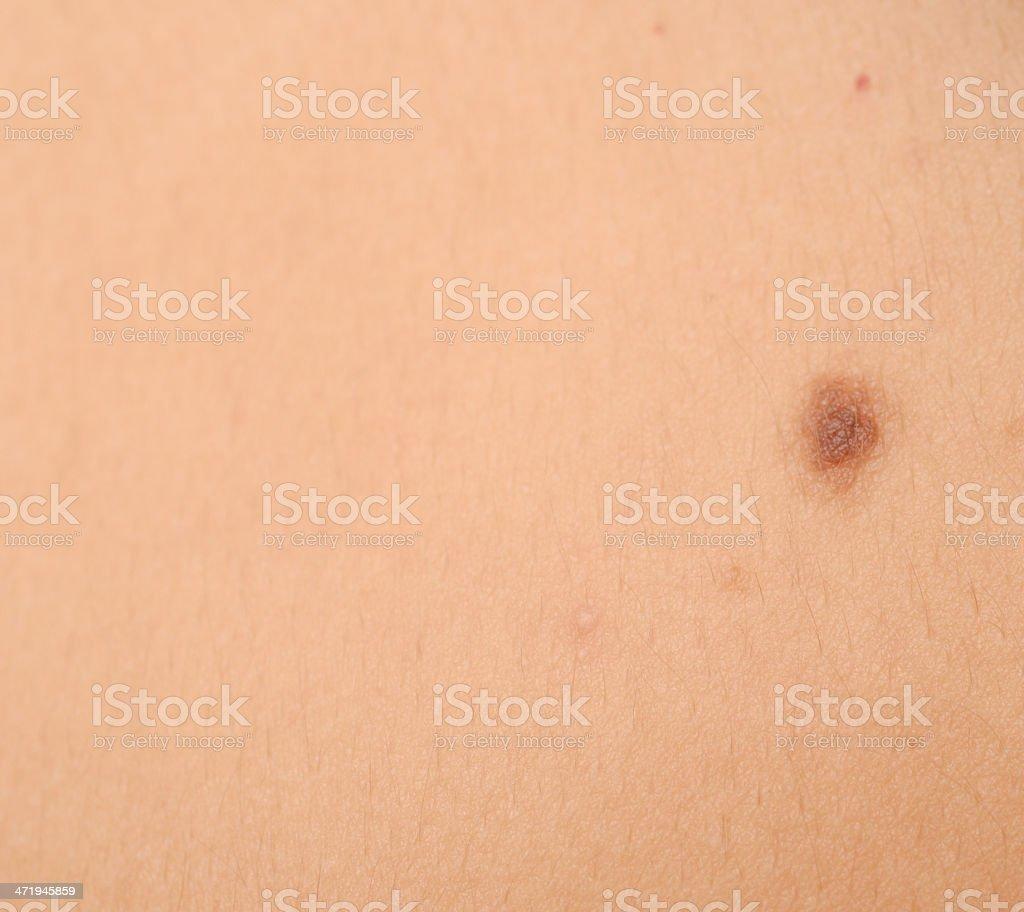 melanoma mole stock photo