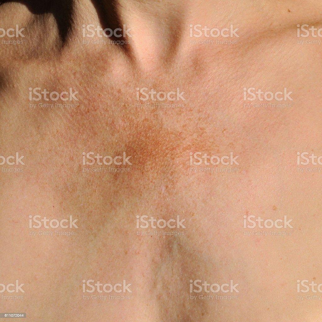 Melasma: skin pigmentation disorder stock photo