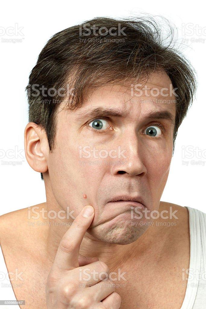 Men squeezing a pimple stock photo