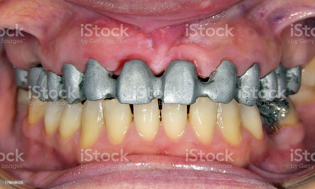 Metal Construction for Dental Bridge stock photo
