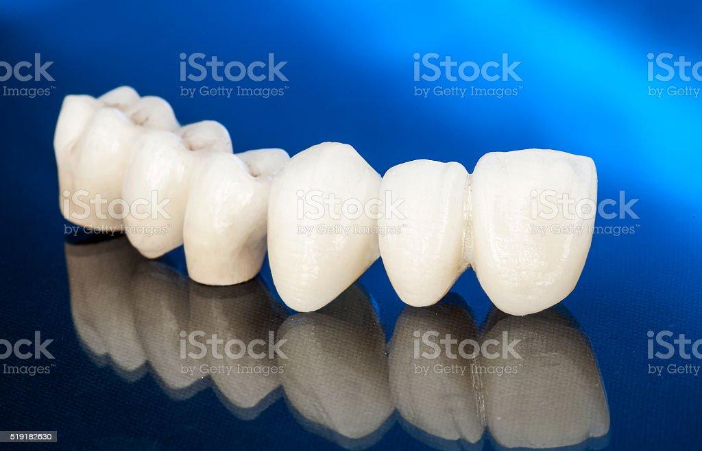 Metal free ceramic dental crowns stock photo