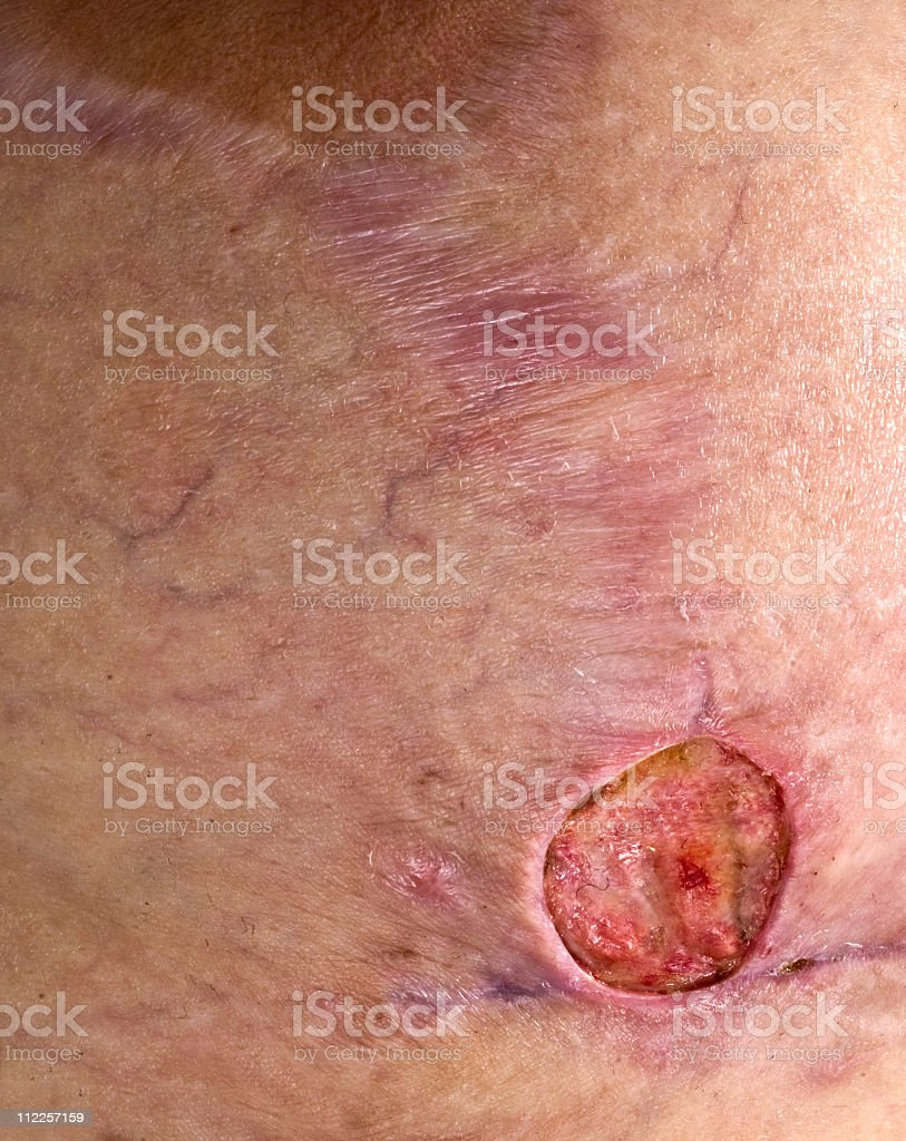 Methicillin Resiststant Staphylococcus Aureus breast royalty-free stock photo